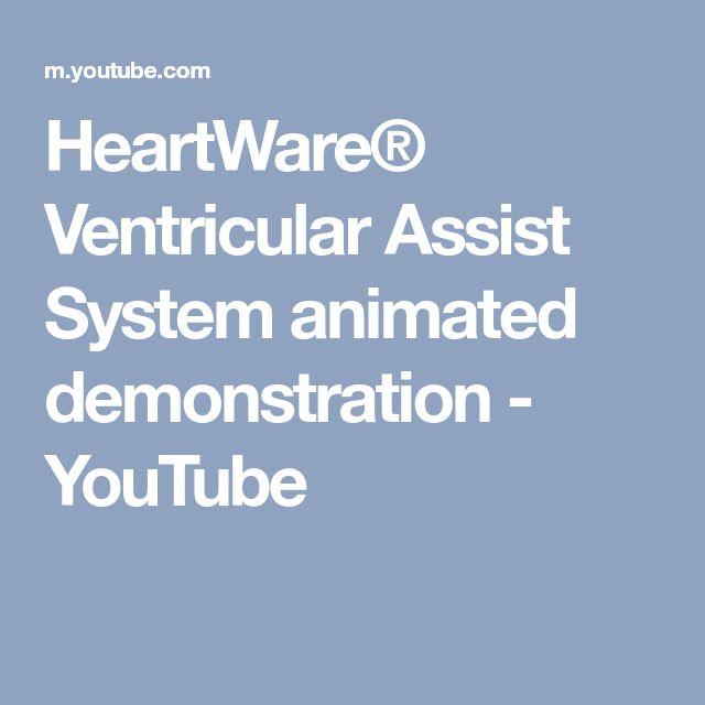45 best LVAD- mechanical heart images on Pinterest | Heart failure ...