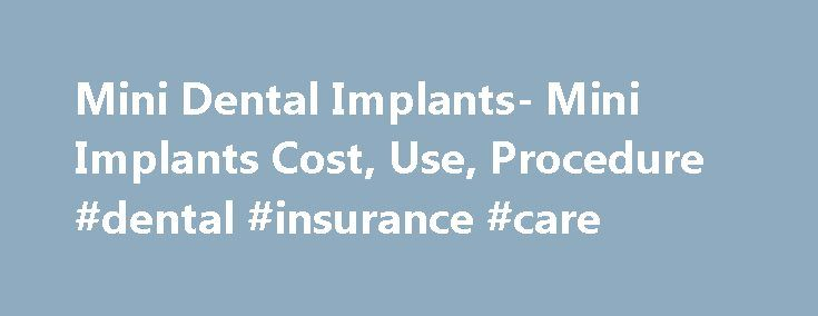Mini Dental Implants- Mini Implants Cost, Use, Procedure #dental #insurance #care http://dental.remmont.com/mini-dental-implants-mini-implants-cost-use-procedure-dental-insurance-care/  #dental implants prices # Popular Topics Mini Dental Implants: Use, Differences, & Procedure Mini dental implants are an alternative to traditional dental implants but are typically used in situations where a smaller implant is needed to fit into a narrow location. Smaller teeth and incisors are good…