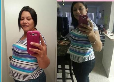 Prescription weight loss medications best picture 2