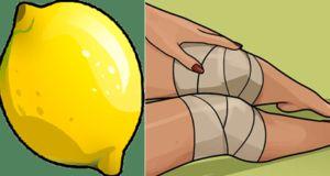 Trápí Vás bolavá kolena? Vyzkoušejte tyto přírodní látky. Které Vám zaručeně uleví.
