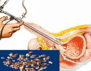 Saiba o que é RTU de próstata_leia o artigo em nosso Blog ->> http://guiacancerdeprostata.com/saiba-o-que-e-rtu-de-prostata/ -<<<