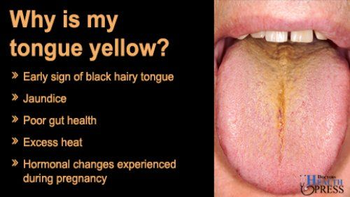 Why is my tongue yellow