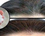 Come sbarazzarsi dei capelli bianchi in un colpo solo: bastano pochi minuti e tre ingredienti