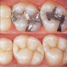 Google Image Result for http://www.hollywoodsmiledentallab.com/wp-content/uploads/2011/07/dental-tooth-colored-fillings.jpg