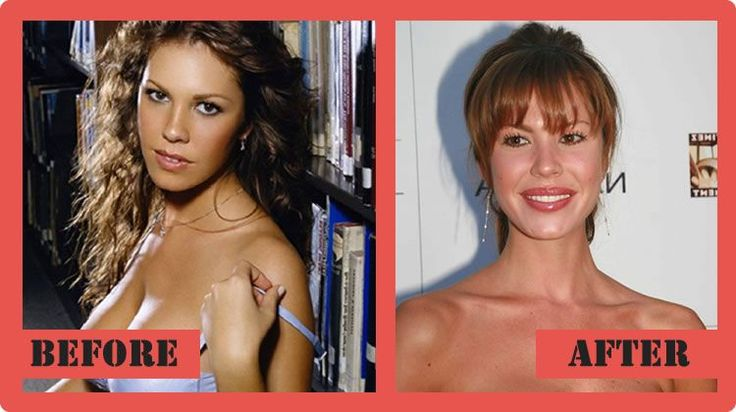 Nikki Cox Plastic Surgery Before And After Nikki Cox Plastic Surgery #NikkiCoxPlasticSurgery #NikkiCox #celebritypost
