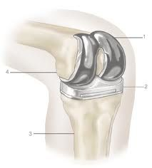 Partial knee replacement surgery in India at affordable cost benefits.  Contact for more assistance :   E-mail : enquiry@jointreplacementsurgeryhospitalindia.com ,  Call Us : 91-98604-32255 ,  Visit Here : http://www.jointreplacementsurgeryhospitalindia.com/procedures/partial-knee-replacement-surgery-india.html