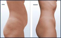 Con este remedio casero podrás decirle ADIÓS a la grasa abdominal en 2 SEMANAS