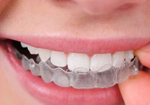 #Invisalign can be the solution to crooked or crowded teeth. Call us at 905-458-1212 to know if this treatment suits you.