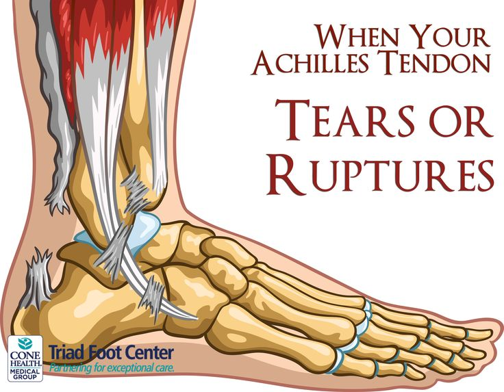 What happens when your achilles tendon tears or ruptures? http://www.triadfoot.com/2015/08/26/when-your-achilles-tendon-tears-or-ruptures/