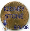 I have passed kidney stones for 18 years. I pass stones several times a month. I am a kidney stone master! I would like to share what I do to cope when I am passing a stone and also explain a little about why I have so many kidney stones. I have Medullary Sponge Kidney, also known as MSK or Cacchi-Ricci disease. I hope you find some answers to your questions here.