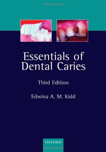35 best dental ebooks images on pinterest free ebooks ebook pdf essentials of dental caries 3rd edition ebook pdf free download edited by edwina a m kidd publisher fandeluxe Images