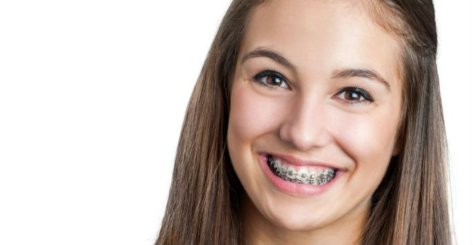 How to Avoid 5 Costly Mistakes when Choosing Orthodontic Care - As an orthodontist,… #Orlando