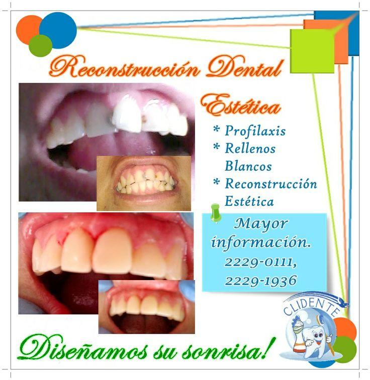Reconstrucción Dental Estética