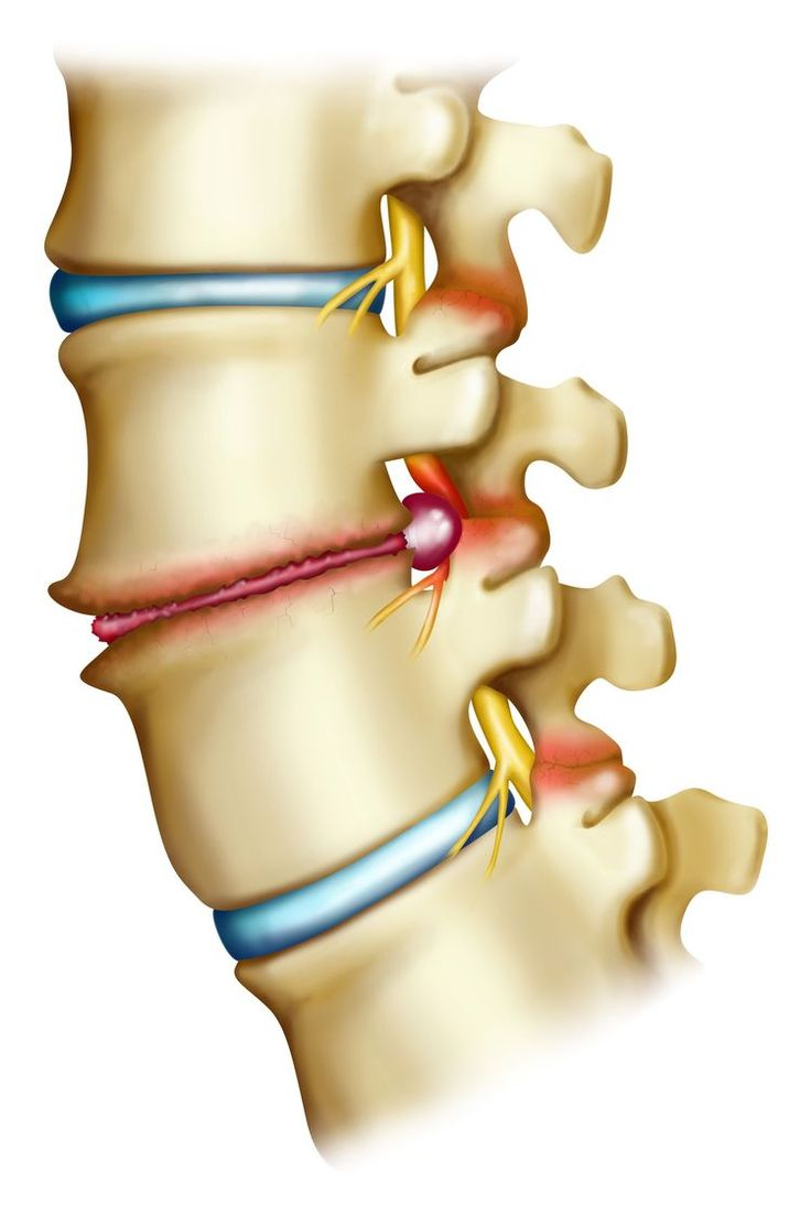 Causes of Cervical Radiculopathy