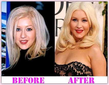 Christina Aguilera Plastic Surgery Before And After Christina Aguilera Plastic Surgery #ChristinaAguileraplasticsurgery #ChristinaAguilera #plasticsurgeryrumors