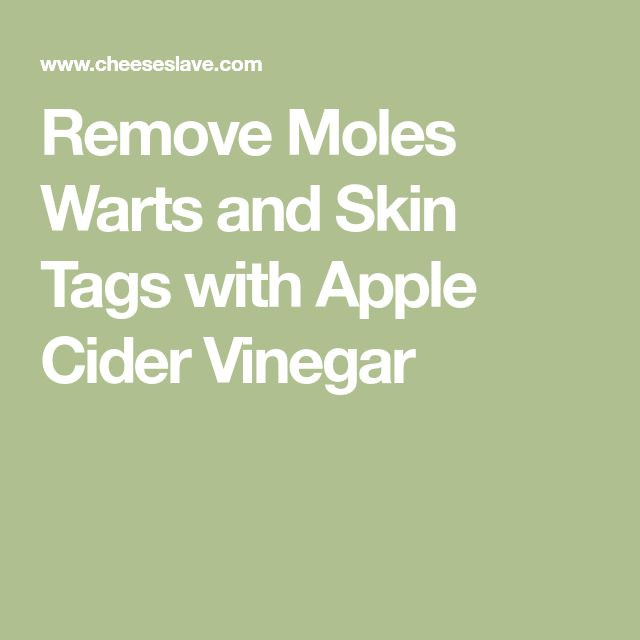 Remove Moles Warts and Skin Tags with Apple Cider Vinegar http://wartremovalpro.com/moles-on-face/