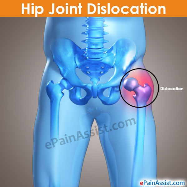 Hip Joint Dislocation