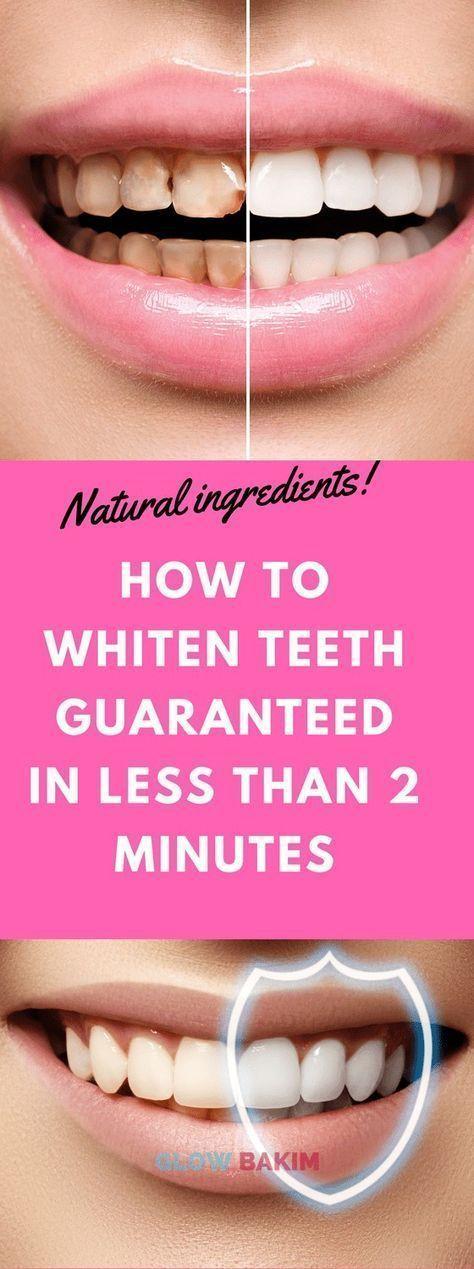 Wie Zähne in weniger als 2 Minuten garantiert weiß werden – Meine Tipps Gesund…