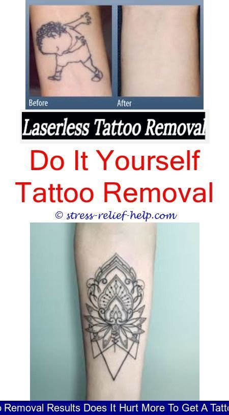 885bae7f1d4e3 laser tattoo removal cost how much did your laser tattoo removal cost - what  does tattoo removal look like after.eyebrow tattoo removal can tattoo  removal ...