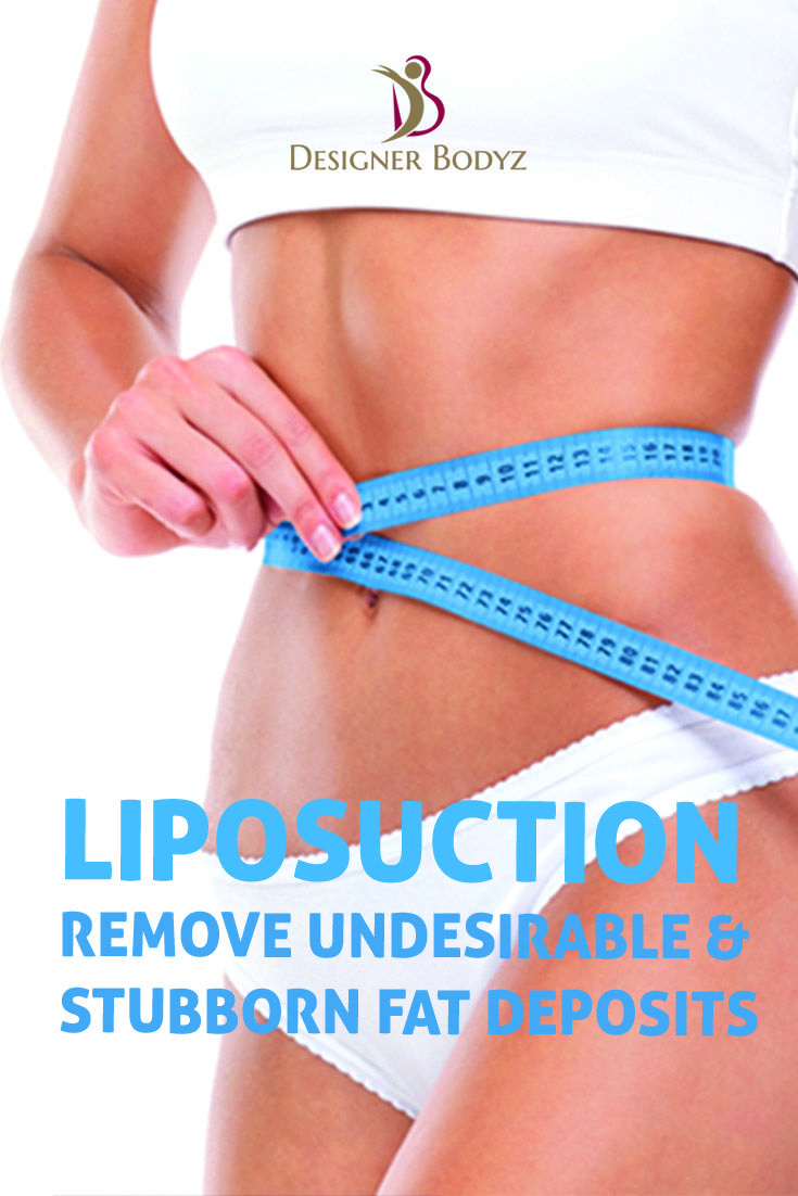 Liposuction eliminates the excess fat from the desired body parts. If you are looking for inch loss at an affordable price, then contact us & treat by experienced doctors :http://designerbodyz.in #Botox #CheekLift #ChemicalPeel #ChinSurgery #CosmeticDentistry #Dermabrasion #BrowLift #Blepharoplasty #EyelidSurgery #Facelift #Liposuction #Commonmyths