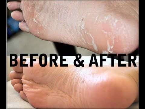 How to Get Rid of Cracked, Dry, Stinky FEET! It peels your dead skin off your feet for smooth feet!!! :D Watch video here: http://youtu.be/gfgORbv0Te0