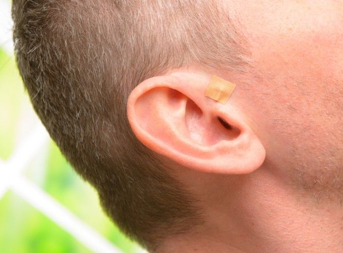 23 best images about Auricular Acupuncture on Pinterest ...