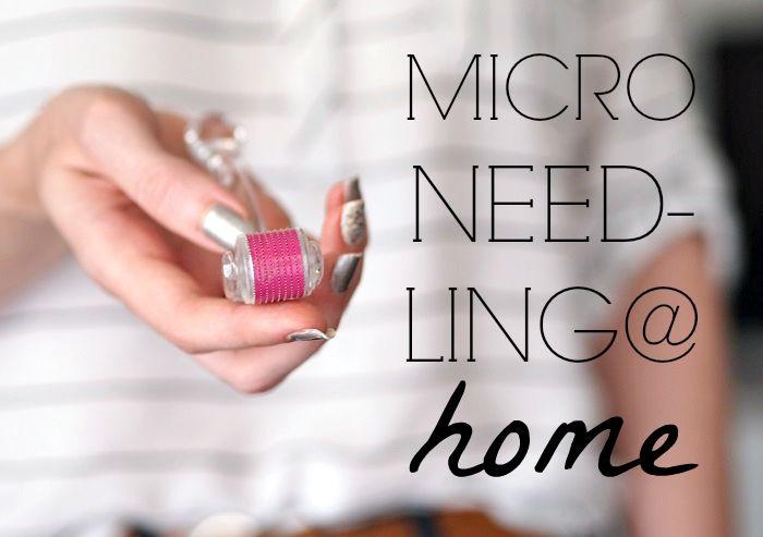 microneedling @ home