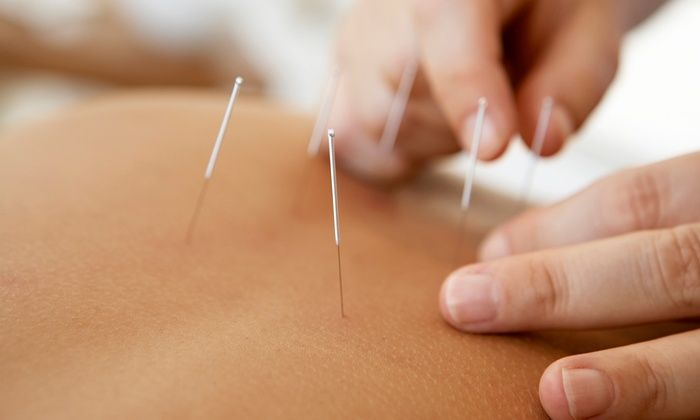 Lawrence Miller, Licensed Acupuncturist - Culver - West: One or Three Acupuncture and Cupping Treatments from Lawrence Miller, Licensed Acupuncturist (Up to 83% Off)