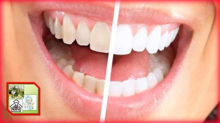 ¡ Blanquea tus dientes en casa ! Sin gastar dinero extra