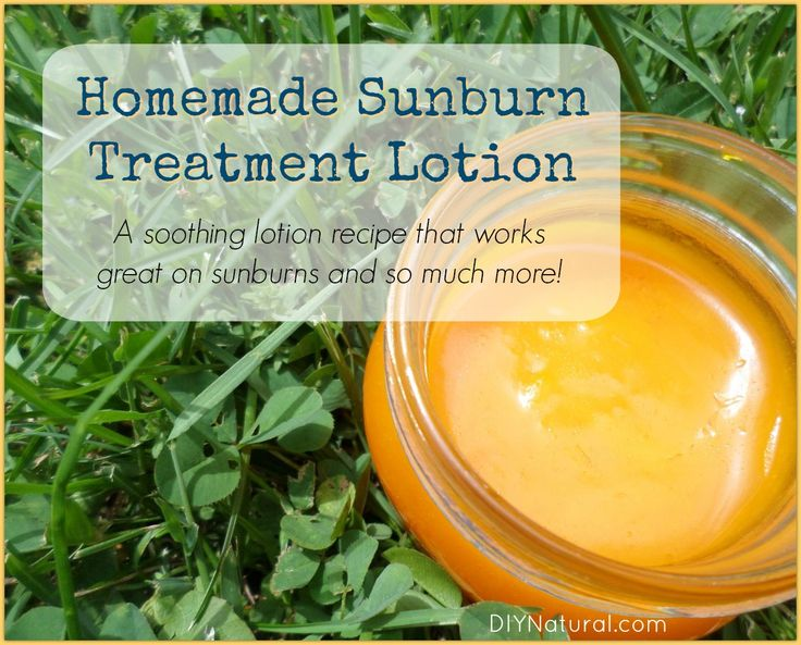 how to get rid of sunburn fast without aloe vera