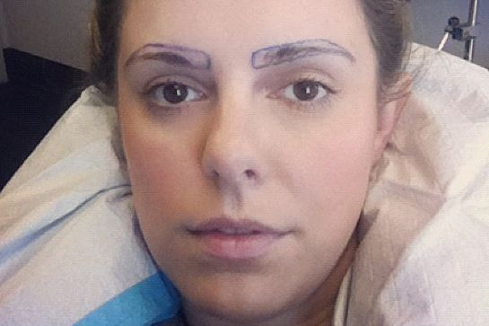 The True Story Of Eyebrow Transplants #refinery29  http://www.refinery29.com/brow-transplant#slide-1  For my brow transplant surgery, I went to Dr. Dauer in Los Angeles, who is a true artist. I was going to get around 650 grafts of hair, and it would cost $5,000.  There are two types of eyebrow transplants: FUT (Follicular Unit Transplant) and NeoGrafting. FUT is where they remove a four-inch-wide slice of scalp from the ba...