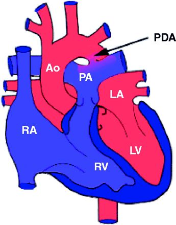 """Patent ductus arteriosus (PDA)  The DA normally closes within the 24 hours of birth. Occasionally, the DA remains open, or patent. This is commonly referred to as a """"hold in the heart."""" Doppler blood flow studies can help diagnosis this condition intrautero while an echocardiogram (echo) can be used to monitor the newborn's DA."""
