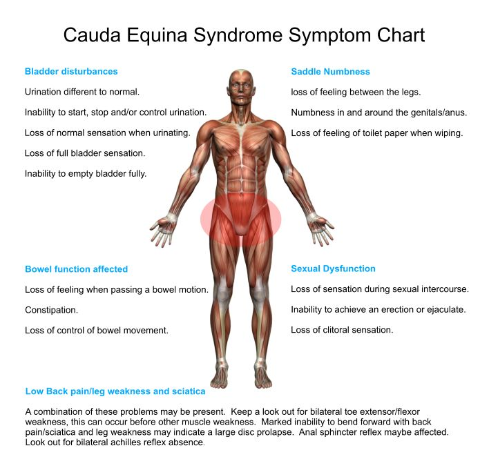 Cauda Equina Syndrome (CES) Red Flag Signals | Inspired Spinal Cord Injury Support Forum