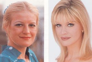 "Cindy Jackson:  Before & After Plastic Surgery Photos ""Famous For Having The Most Plastic Surgery Procedures.  Oooh La La!"