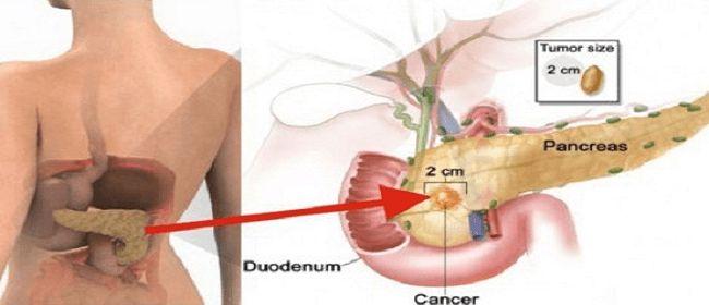 Sólo come unos trozos de esto y tendrá un 20 % de probabilidad de cáncer de páncreas