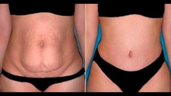 Rápidamente arreglar el vientre en 7 días