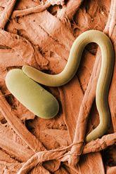 A baja temperatura micrografía electrónica de barrido de nematodo quiste de la soja y huevo.  Enlace a la versión de 300 dpi