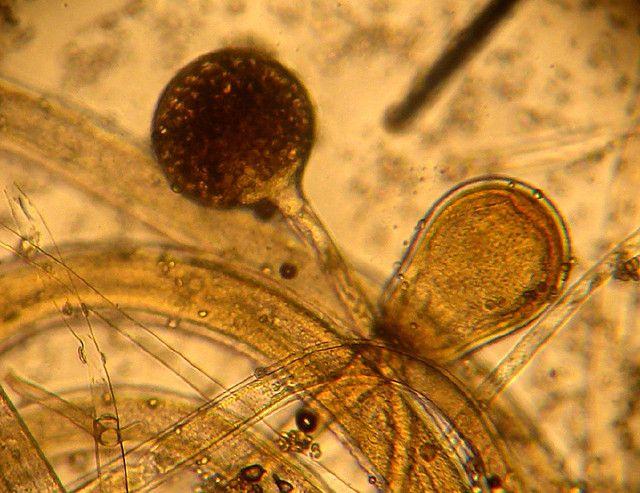 Картинки пыли под микроскопом появления экземы