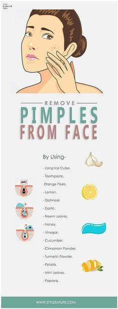 How To Remove Pimples From Face? #AcneScarsDiy