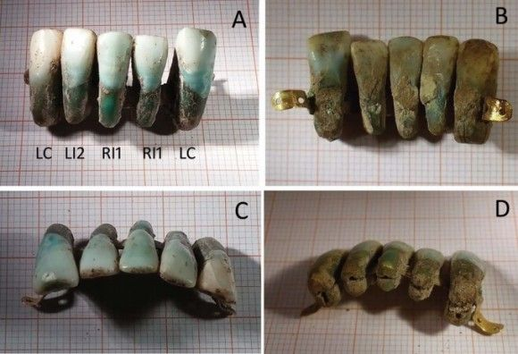 Una prótesis dental de principios del siglo XVII | Ciencia | La Ciencia de la Mula Francis