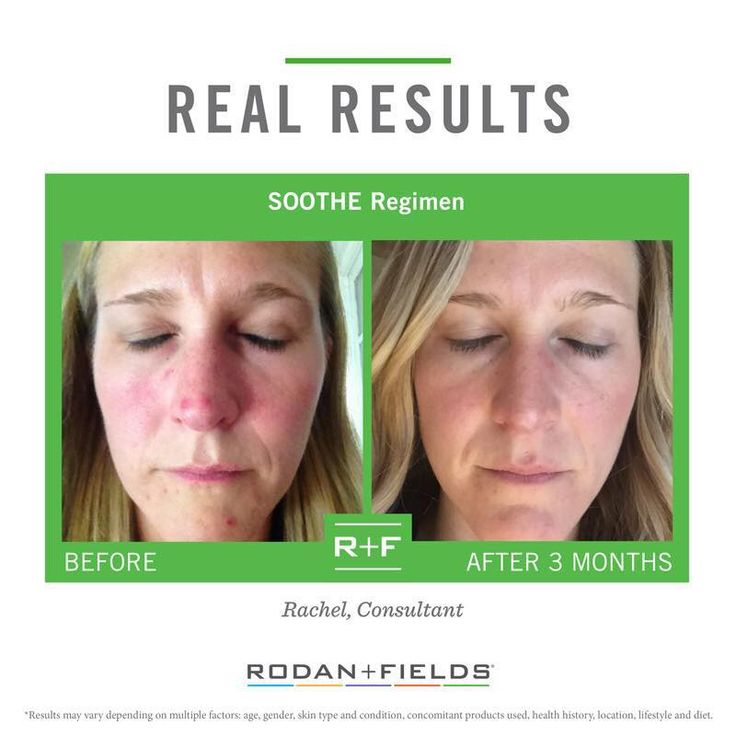 If you have irritated skin and the winter is just infuriating it even more, you should look at giving Rodan and Fields Soothe a try. Try it risk free for 60 days...if you don't love it, send it back! Email me to get hooked up with 10% off and free shipping straight to your door. ReaganOglesby@gmail.com