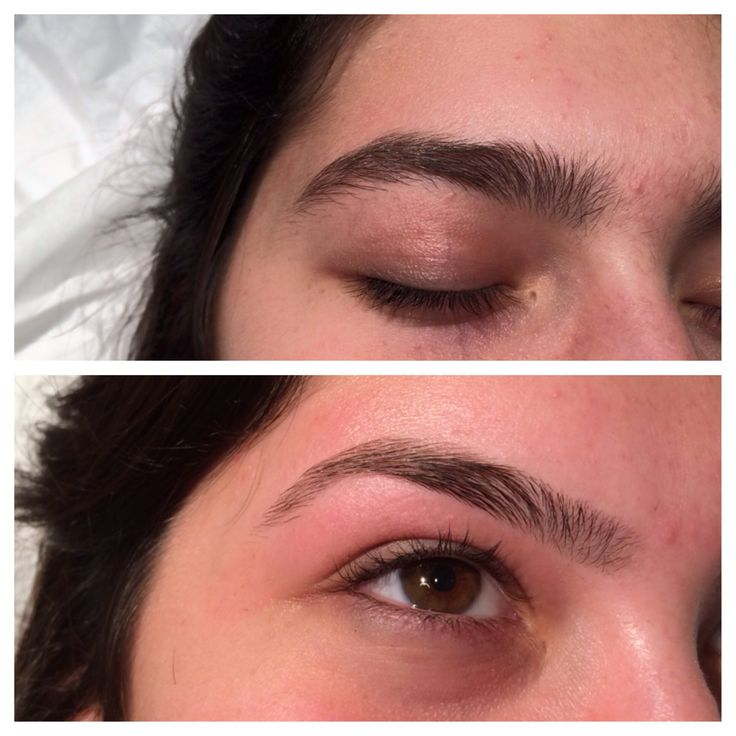 Eyebrow shaping - before and after - 65.1KB