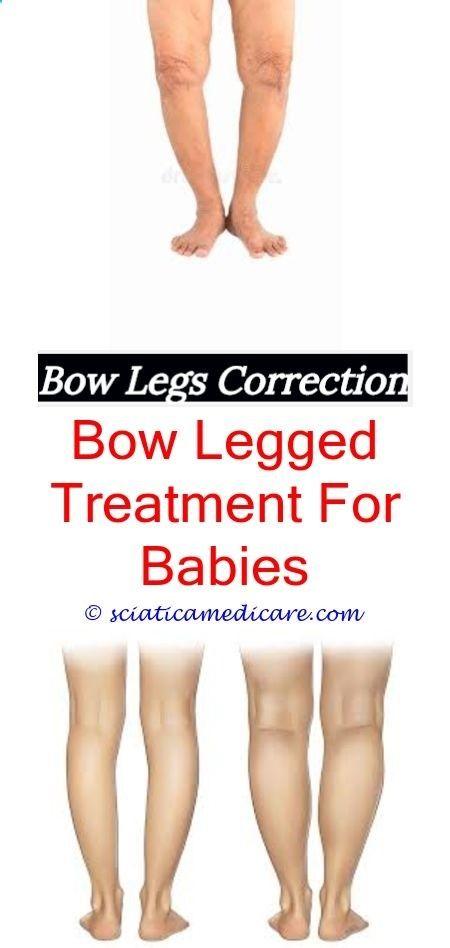 Bow legs teens
