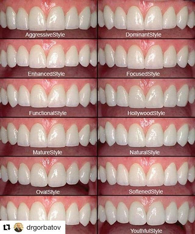 """Credit to @drgorbatov  ・・・ Ceramic Dental Veneers in 3 visits and 10 days  Get a Beautiful New Smile with completely natural looking """"pearly-white"""" restorations with porcelain veneers. The work could be done in only three visits resulting in natural-looking yours best smile, the new sense of confidence and feeling great about your New Smile.  Book an appointment online: http://gorbatovdentistry.com/appointment/  Gorbatov Dentistry  Address: 3800 S Ocean Dr, Suite 210 Hollywood, FL 33019…"""