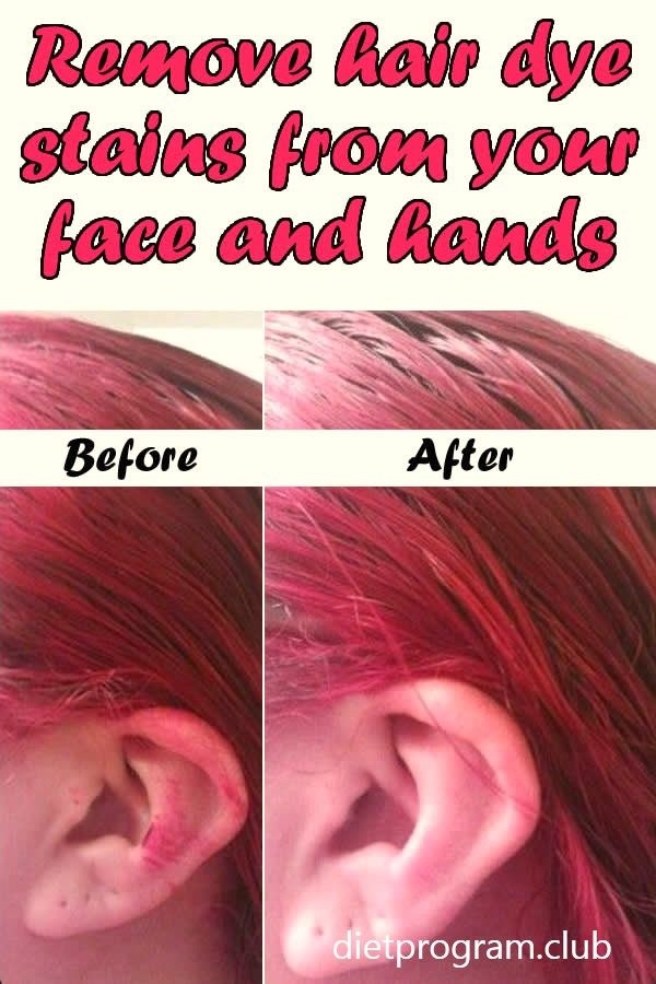 Easily Remove Hair Dye Stains From Your Face And Hands Diet Fitness Health Tips Dyed Hair Hair Dye Removal Hair Color Remover