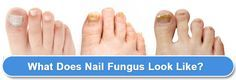 Japanese Toenail Fungus Code Review  Effective Solution For Unwanted Fungus?