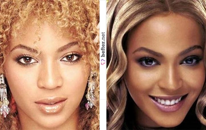 Beyonce nose