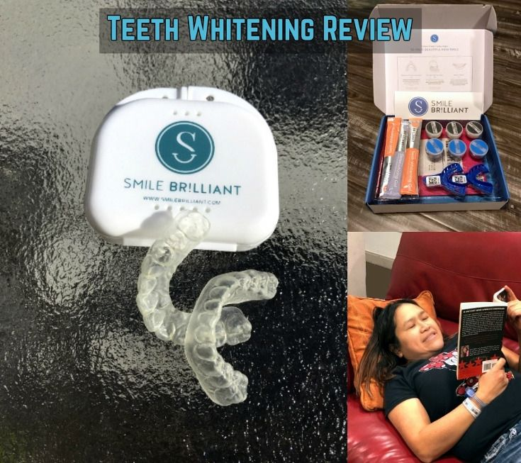 A review of the teeth whitening system by Smile Brilliant.