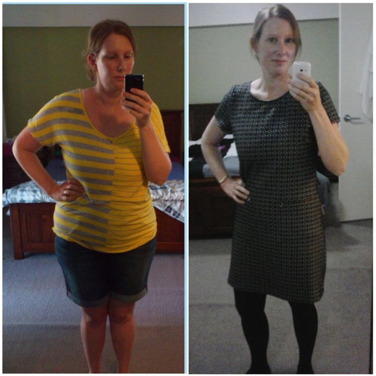 Quick weight loss anorexia photo 2