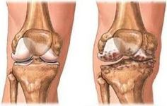 Bitkisel çözümler: Kireçlenme (Osteoartrit) Nedir? Bitkisel Tedavi Yö...